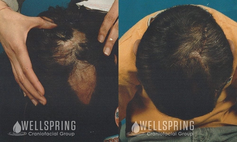 Scalp Alopecia Tissue Expansion and Reconstruction Austin Patient 1